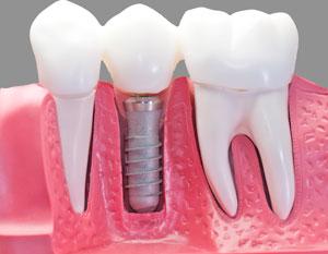 השתלות שיניים | השתלת שיניי