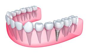 Имплантация зубов в Израиле | Зубные имплантаты в Израиле | Имплантаты | Зубные импланты